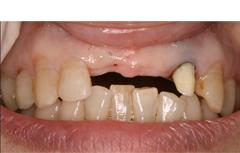 前歯部症例(ノーベルガイド)
