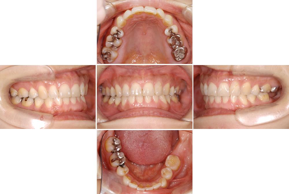 歯並び不整