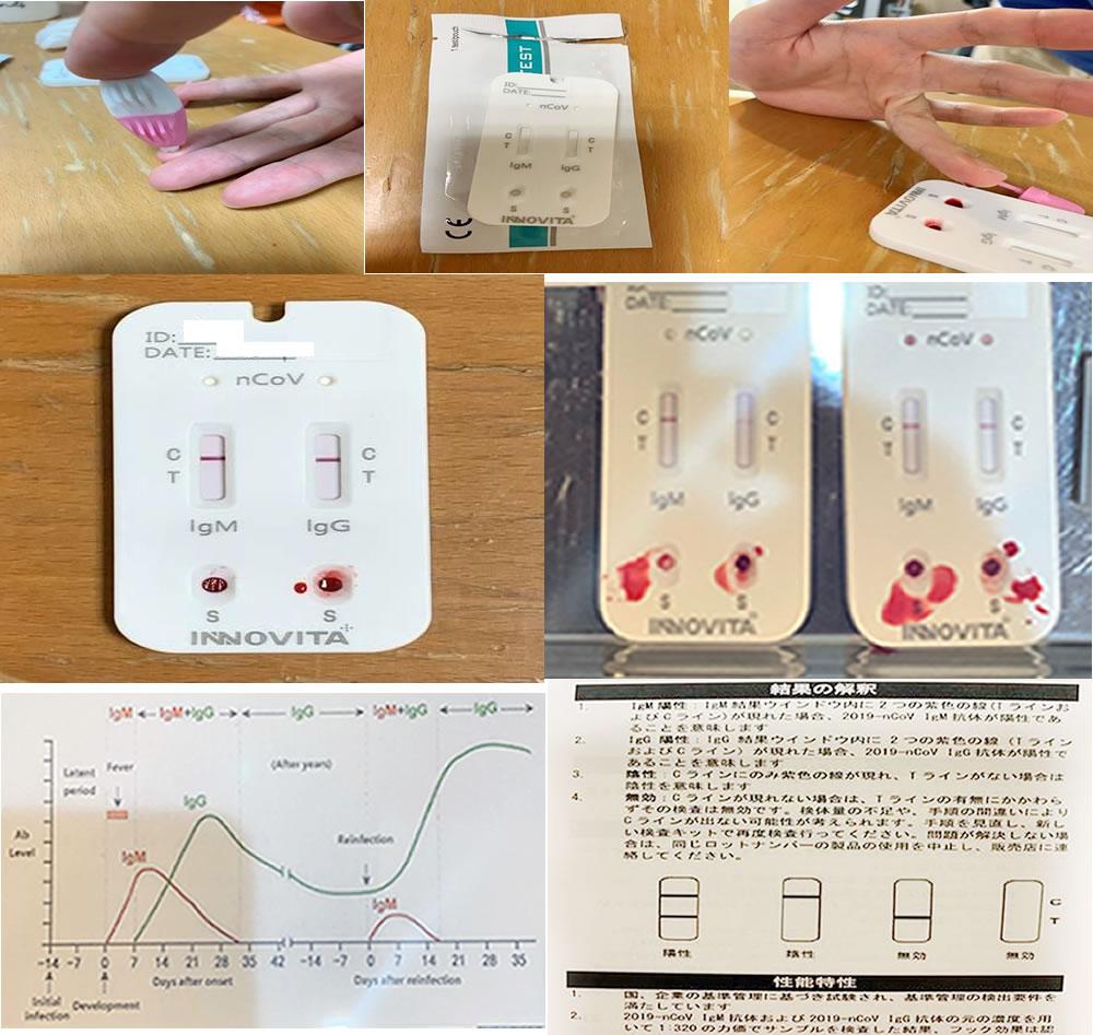 抗原抗体検査
